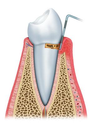 chirurgia-parodontite-Bergamo